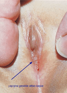 labial füzyon